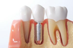 Model of a dental implant