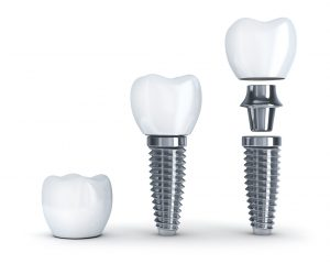 Three parts to dental implant