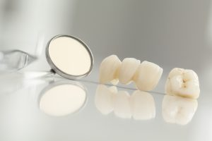 CEREC crowns are realistic and durable.